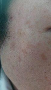 顔のシミにピコレレーザー照射